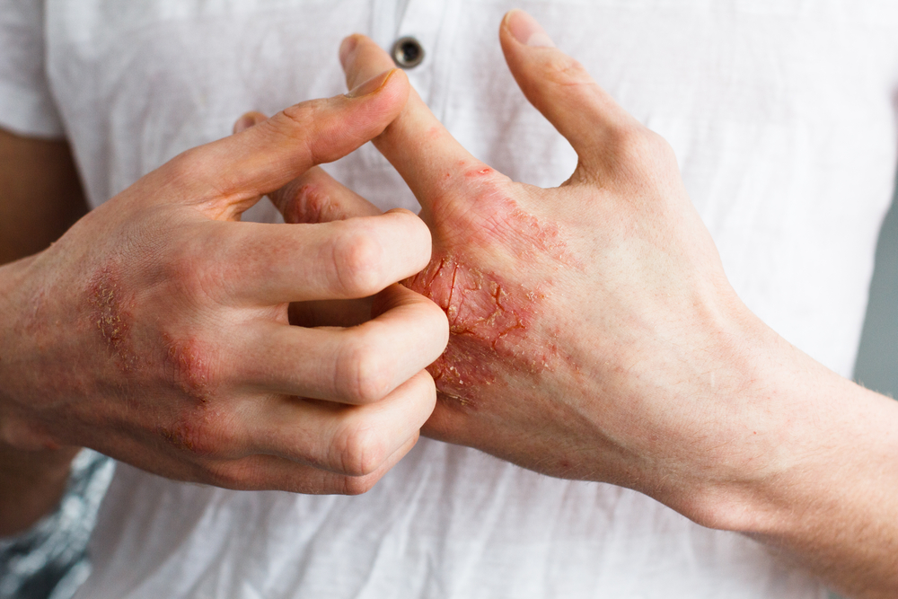psoriasis mains